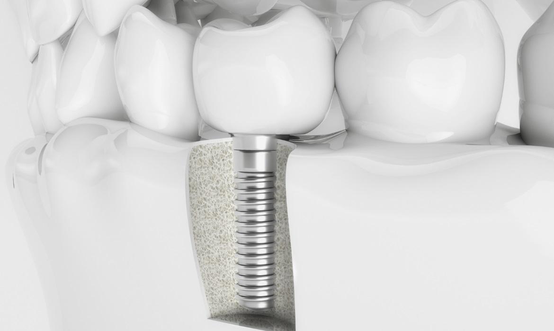 Dorident - Implanty