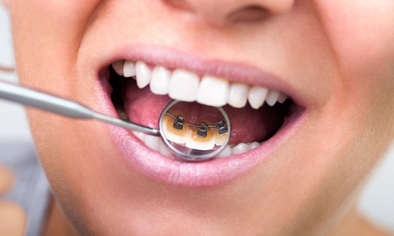 Dorident - Ortodoncja